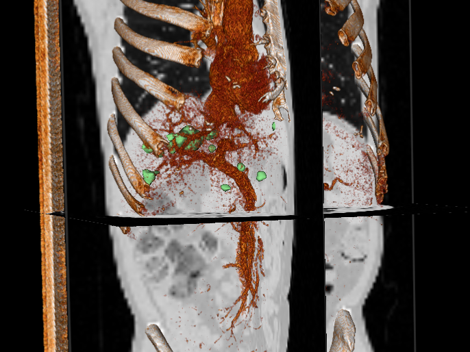 Figure 1. 3D illustration of locations, sizes and distribution in liver metastasis (green).