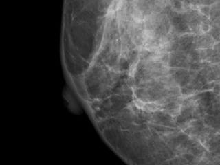 Figure 1. Mediolateral oblique view of right breast.