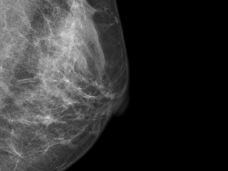 Figure 2. Mediolateral oblique view of left breast.