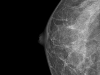 Figure 3. Craniocaudal view of right breast.